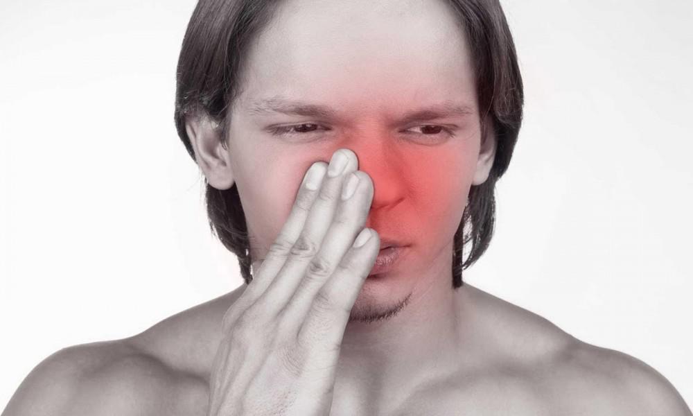 التهاب الجيوب الأنفية الحادة