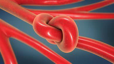جلطات الدم قد لا تلاحظها.. لكن هذه أعراضها وعواقبها